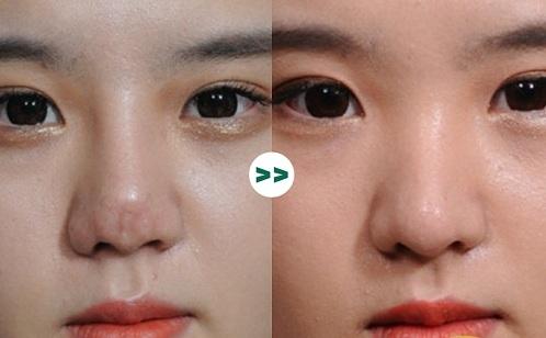 90% chị em lựa chọn nâng mũi cấu trúc khi phẫu thuật thẩm mỹ, tại sao?  - Ảnh 2