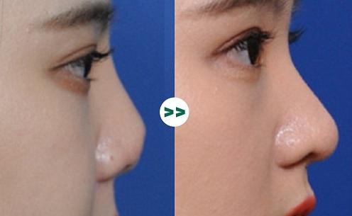 90% chị em lựa chọn nâng mũi cấu trúc khi phẫu thuật thẩm mỹ, tại sao?  - Ảnh 3
