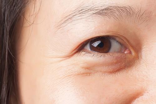 """Bạn có tin """"đánh bay"""" bọng mắt hiệu quả chỉ với một lần duy nhất? - Ảnh 1"""