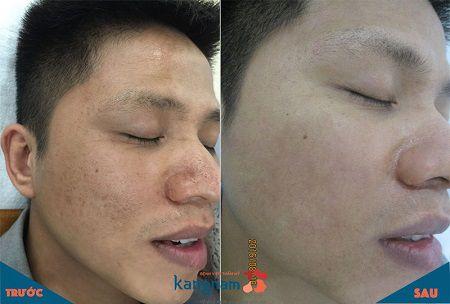 Giải pháp cải thiện 90% sẹo rỗ giúp da sáng mịn - Ảnh 2