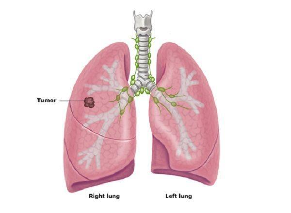 Bệnh ung thư phổi có mấy loại, mấy giai đoạn? - Ảnh 2