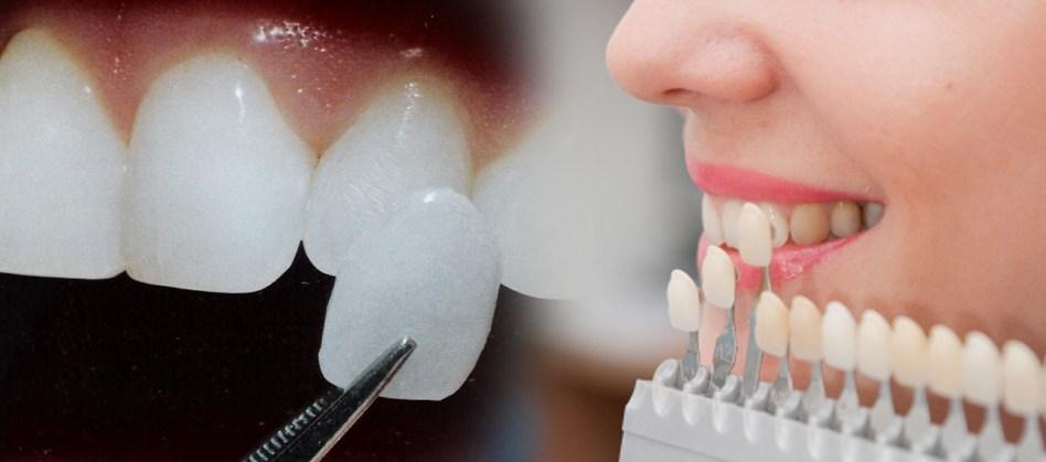 Veneer Ultrathin - Lựa chọn số 1 để có hàm răng sáng đẹp như ý - Ảnh 1