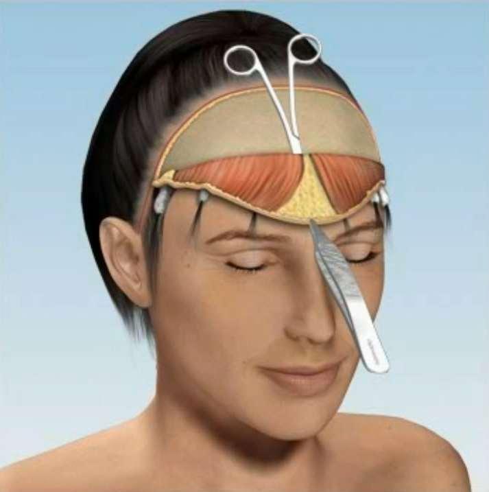 Căng da nội soi: Giải pháp gạt đi nỗi ám ảnh của căng da truyền thống - Ảnh 3