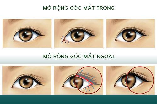 Mở rộng góc mắt: Phương pháp giúp cải thiện độ rộng của mắt - Ảnh 1
