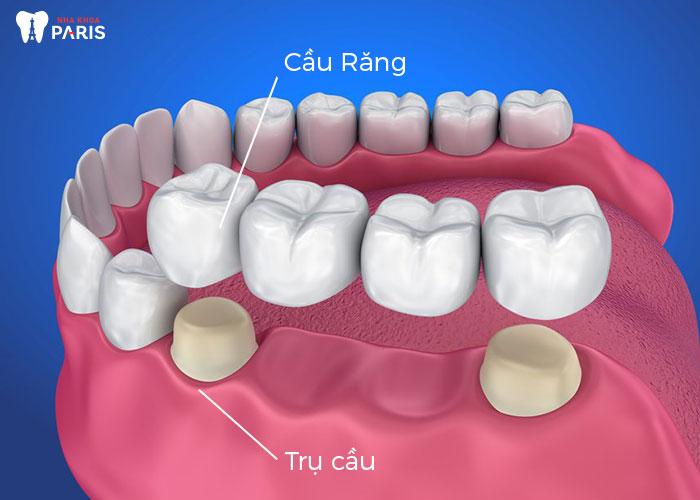 Làm cầu răng có ưu, nhược điểm gì? - Ảnh 1