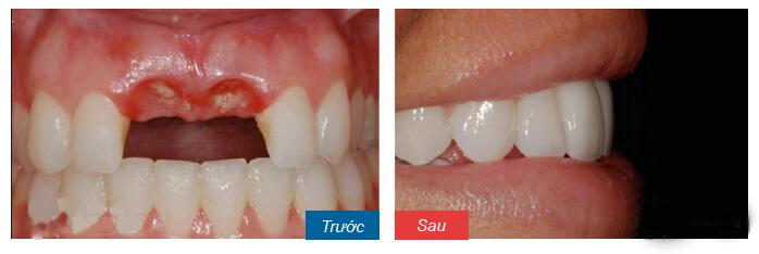 Làm cầu răng có ưu, nhược điểm gì? - Ảnh 4