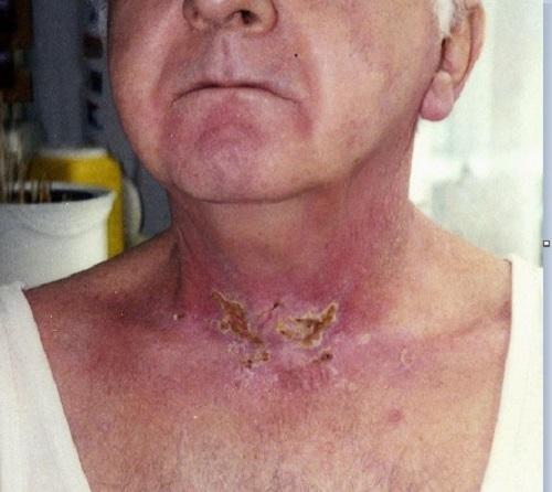 5 yếu tố quyết định bệnh nhân xạ trị sống được bao lâu?  - Ảnh 2