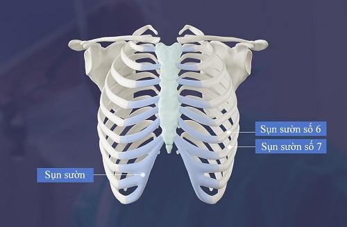 4 lý do khiến bạn bị thuyết phục hoàn toàn khi lựa chọn nâng mũi cấu trúc  - Ảnh 4