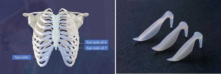 Nâng mũi sụn sườn & nâng mũi sụn nhân tạo: Kẻ 8 lạng người nửa cân  - Ảnh 1