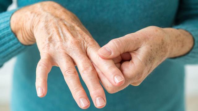 7 triệu chứng ung thư phổi dễ nhận biết sớm nhất - Ảnh 2