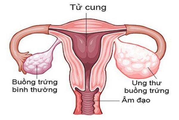 Điều trị ung thư buồng trứng như thế nào để đem lại hiệu quả cao - Ảnh 1
