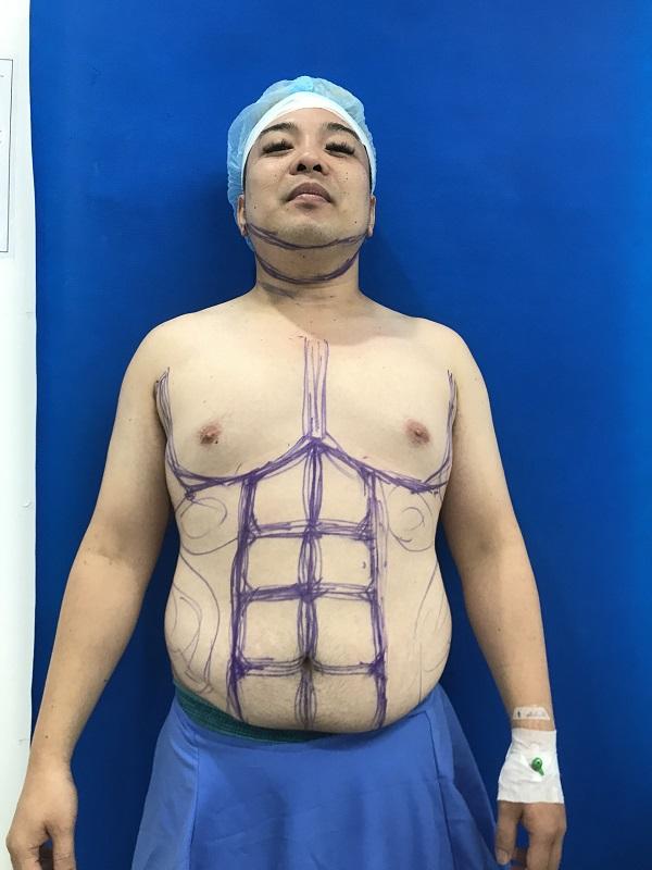 """Chàng ca sĩ Philipine chọn Việt Nam để lột xác thành """"soái ca 6 múi"""" - Ảnh 1"""