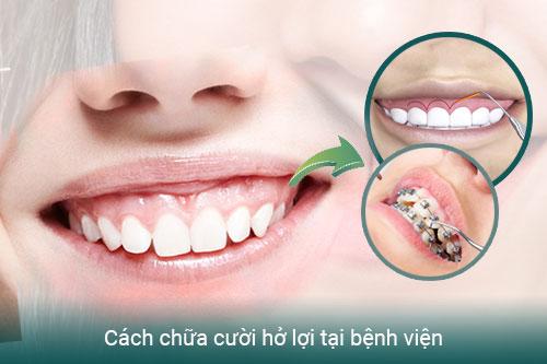 Cười hở lợi: Nguyên nhân và cách điều trị hiệu quả - Ảnh 2