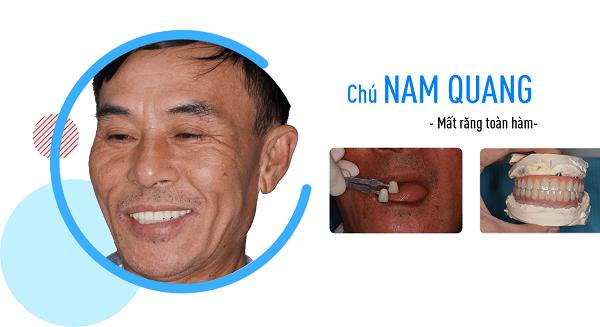 Mất răng: Nguyên nhân hàng đầu gây mất trí nhớ - Làm sao để khắc phục hiệu quả? - Ảnh 4