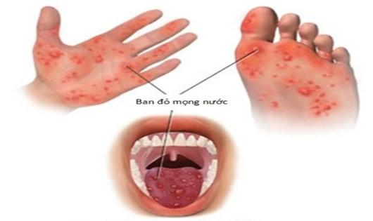 Bộ Y tế ra công văn khẩn về phòng, chống dịch bệnh tay chân miệng - Ảnh 1