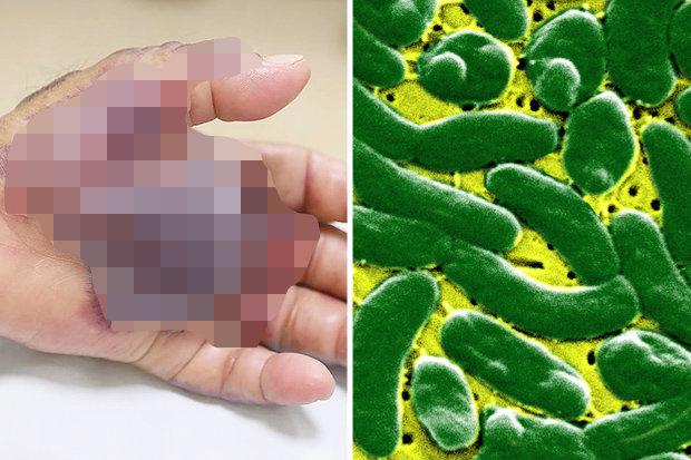 Người đàn ông mất tay vì vi khuẩn ăn thịt người  - Ảnh 1