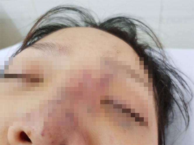 Tiêm filler giá rẻ ở spa, thiếu nữ có nguy cơ mù mắt - Ảnh 1