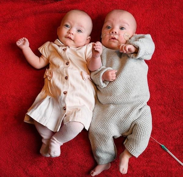 Chuyện xưa nay hiếm: Bà mẹ sinh đôi 2 con cách nhau 12 ngày - Ảnh 2