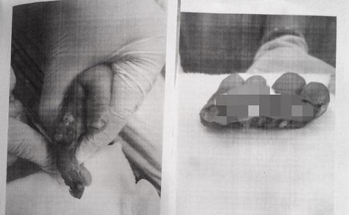 Vì một phút sơ sẩy của người lớn, bé 1 tuổi bị đứt lìa 4 ngón tay - Ảnh 1