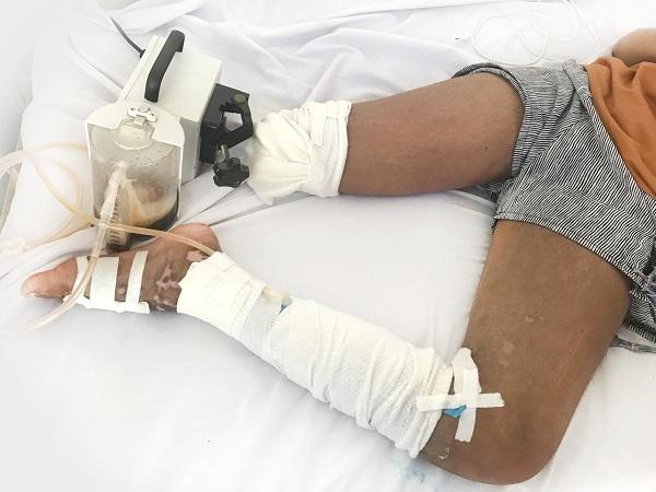 Bỏ bệnh viện về tìm thấy lang nhờ trị rắn cắn, bé gái 13 tuổi phải cắt cụt chân - Ảnh 1