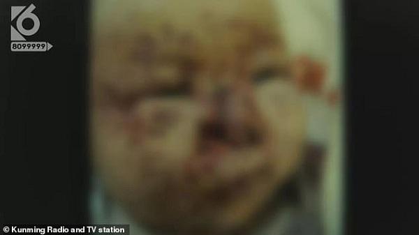 Tin tức đời sống mới nhất ngày 14/12/2019: bé  tháng tuổi bị chuột cắn hơn 100 vết trên mặt - Ảnh 1