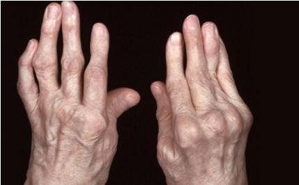 Bệnh viêm đa khớp có nguy hiểm không? - Cùng nghe chuyên gia giải đáp thắc mắc - Ảnh 2