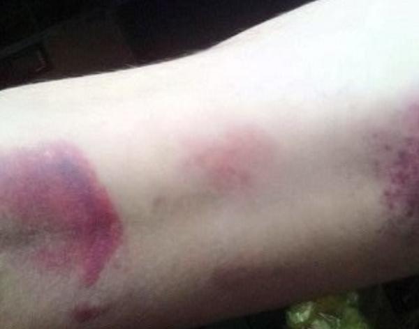 Sở GD&ĐT Bà Rịa - Vũng Tàu ban hành văn bản khẩn vụ cô giáo đánh 22 học sinh bầm chân - Ảnh 1