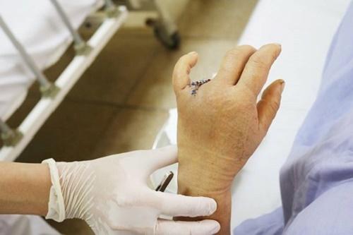 Người phụ nữ mất 2 đốt ngón tay vì thói quen hằng ngày nhiều người mắc phải - Ảnh 1