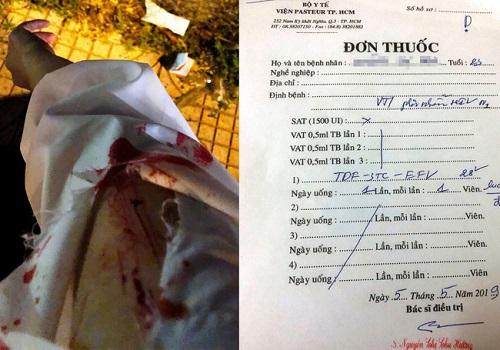 Cô gái phải điều trị phơi nhiễm HIV vì bị 2 người lạ rạch tay khi chờ đèn đỏ - Ảnh 2