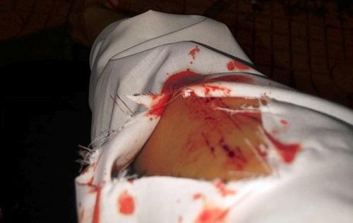 Cô gái phải điều trị phơi nhiễm HIV vì bị 2 người lạ rạch tay khi chờ đèn đỏ - Ảnh 1