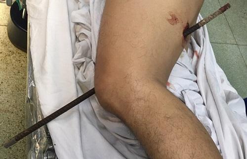 Tin tức đời sống mới nhất ngày 17/6/2019: Bàn chân người đàn ông Quảng Nam chết khô vì nghiện thuốc lá - Ảnh 4