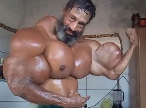 Nghiện tiêm hỗn hợp dầu vào cơ bắp, người đàn ông có nguy cơ bị cắt cụt tứ chi - Ảnh 1
