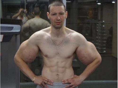 Nghiện tiêm dầu vào cơ bắp, chàng trai phải lên mạng cầu cứu vì nhiễm trùng - Ảnh 1