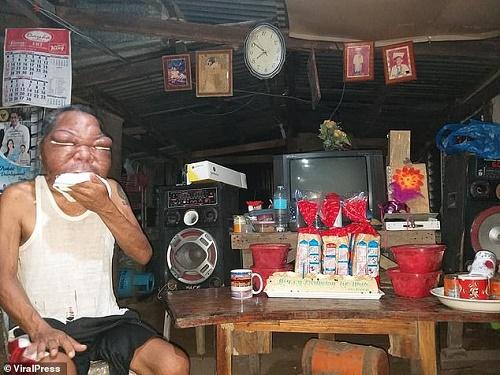 Mắc bệnh lạ, khuôn mặt người đàn ông biến dạng, phình to gấp 3 lần bình thường - Ảnh 3