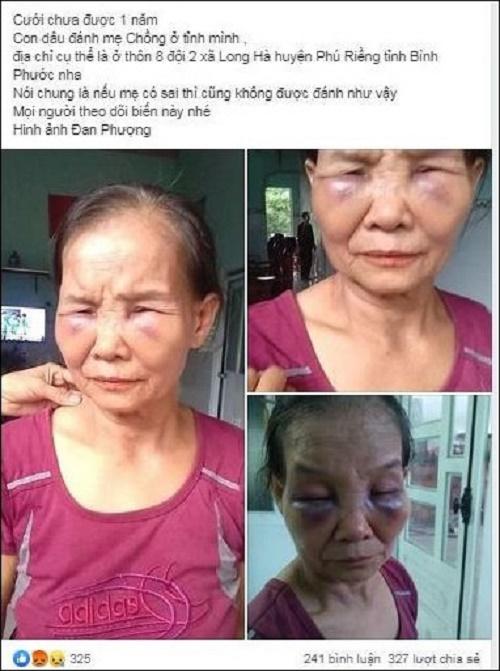 Nàng dâu bị tố đánh mẹ chồng thâm tím mặt mày nói gì? - Ảnh 2
