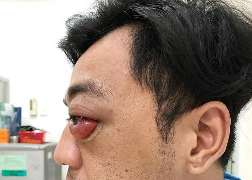 Chàng trai đột nhiên lồi hẳn mắt ra ngoài, suýt mù vĩnh viễn sau 2 năm tai nạn giao thông - Ảnh 1