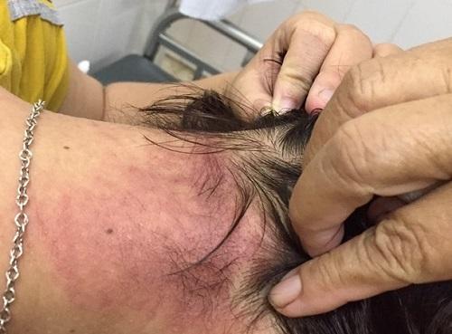 Tin tức đời sống mới nhất ngày 18/8/2019: Dùng tăm bông lấy ráy tai, người phụ nữ suýt tử vong - Ảnh 3