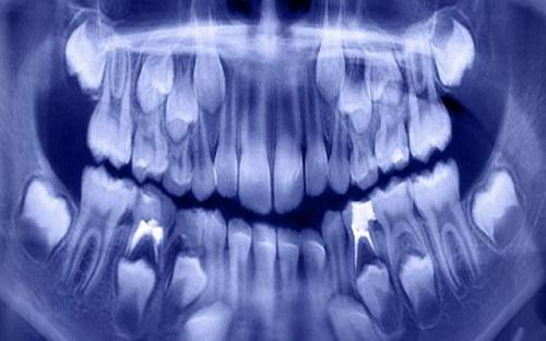 Nha sĩ hoảng hồn lấy ra hơn 500 chiếc răng từ miệng bé trai 7 tuổi - Ảnh 1