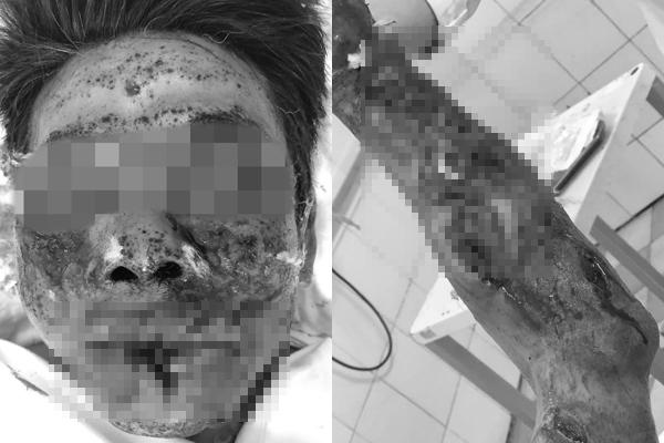 Tin tức đời sống mới nhất ngày 8/1/2020: Người đàn ông suýt mất mạng vì bỏng ngô mắc vào kẽ răng - Ảnh 4