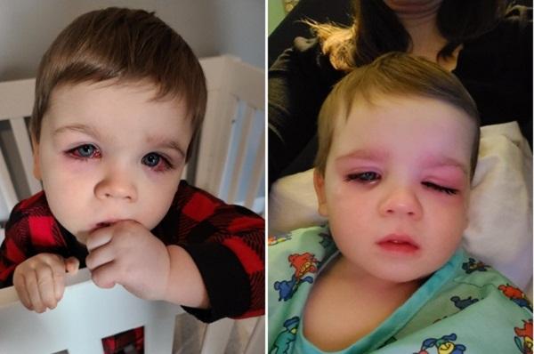 Bé trai suýt mù mắt vì thứ nhiều cha mẹ thường cho con dùng khi tắm - Ảnh 2