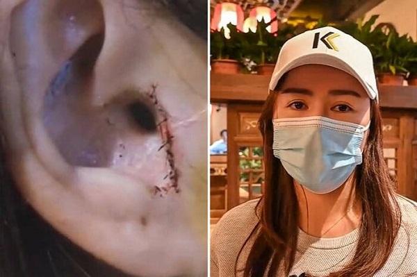 """Phẫu thuật nâng mũi, cô gái """"chết đứng"""" khi bác sĩ """"tiện tay"""" cắt luôn một phần da thịt - Ảnh 1"""