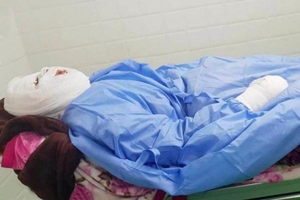 Tin tức đời sống mới nhất ngày 4/2/2020: Người phụ nữ biến dạng mặt vì bị chồng tưới dầu sôi trong lúc ngủ - Ảnh 1
