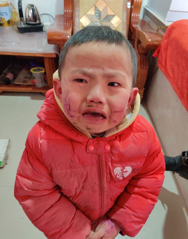 """Bé trai nghịch ngợm tự vẽ lên mặt mình, tới khi soi gương thấy """"thành quả"""" thì òa khóc - Ảnh 2"""