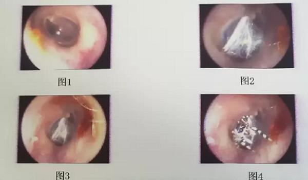 Tin tức đời sống mới nhất ngày 30/4/2020: Nhện sống trong ống tai người phụ nữ - Ảnh 1