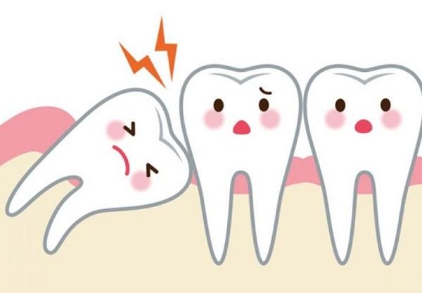 """Tại sao hay """"mọc ngu"""" mà chúng vẫn được gọi là """"răng khôn""""? - Ảnh 1"""