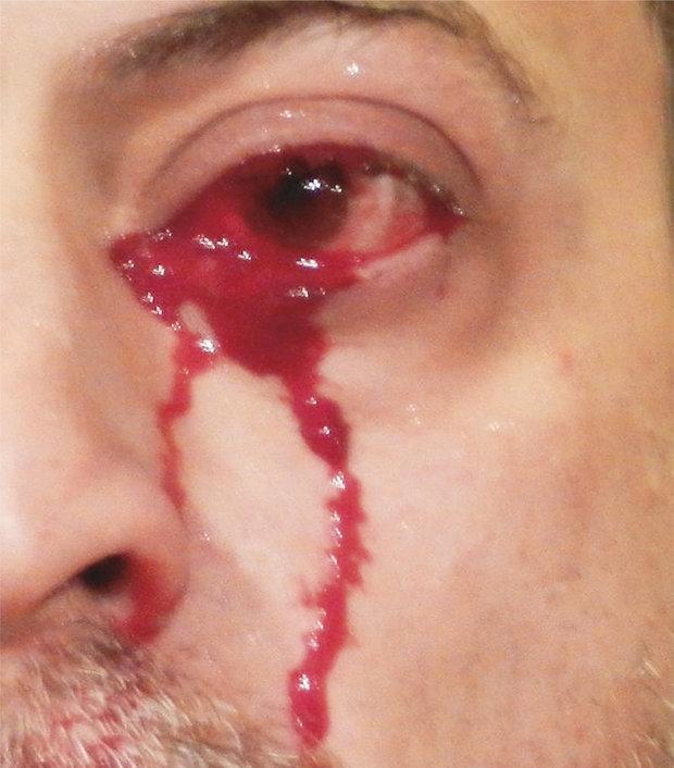 """Bác sĩ choáng váng vì cấp cứu cho người đàn ông """"khóc ra máu"""" liên tục - Ảnh 1"""