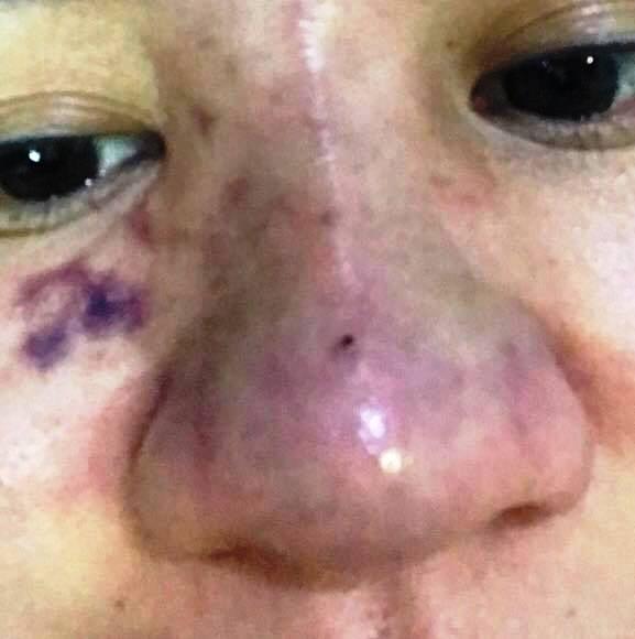 Mũi bị mưng mủ, hoại tử sau khi tiêm filler, cô gái trẻ phải cầu cứu bác sĩ  - Ảnh 2