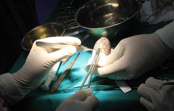 Sau cuộc hôn nhân đổ vỡ, cô gái bẩm sinh khuyết âm đạo đi phẫu thuật tạo hình - Ảnh 1