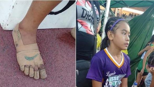 Nghị lực phi thường của bé gái 11 tuổi giành 3 huy chương vàng chỉ với băng dính quấn quanh chân - Ảnh 1