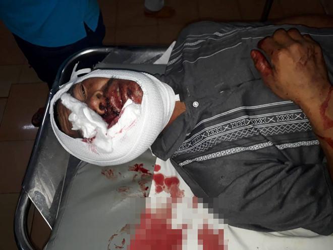 Hỗn chiến lúc bàn chuyện làm ăn, một người đàn ông bị đánh bằng tuýp sắt đến tử vong - Ảnh 1